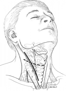 Approach for cervical discectomy and fusion