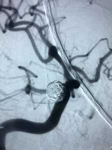 Arteriouivenous Malformations
