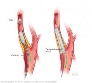 Carotid Atherosclerosis