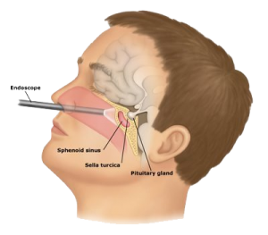 Endoscopic endonasal transsphenoidal surgery