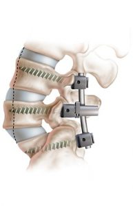 Fusion to treat spondylolisthesis