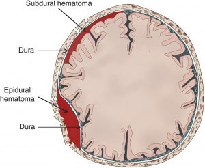 Image showing epidural and subdural hematomas