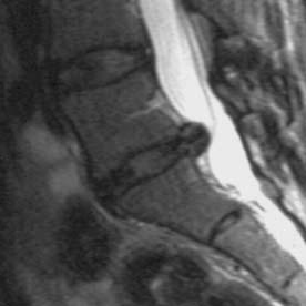 MRI showing a disc herniation