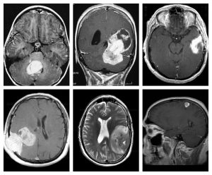 MRI showing different types of brain tumors