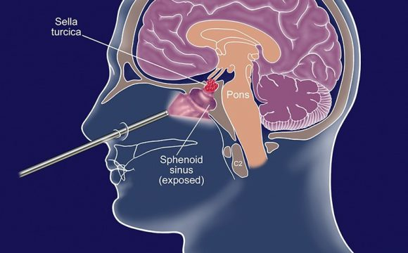 Pituitary Surgery