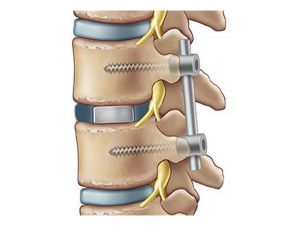 TLIF spinal fixation fusion